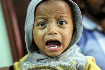 A Yemeni child, who is suspected of being infected with cholera, cries at a hospital in the Yemeni coastal city of Hodeidah on November 5, 2017 AFP